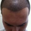 Tarieven haartransplantatie